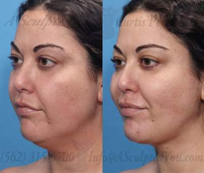 ThermiTight lower face and neck